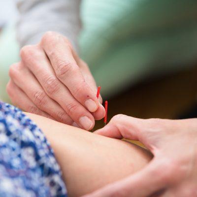 geburtsvorbereitende Akupunktur an den Beinen