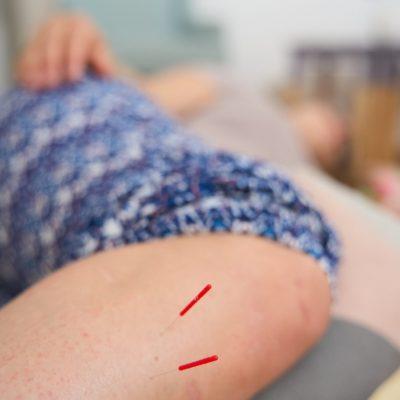 Akupunktur einer Schwangeren zur Geburtsvorbereitung